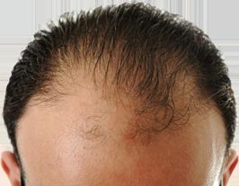 Die Behandlung des Haares fein und trocken